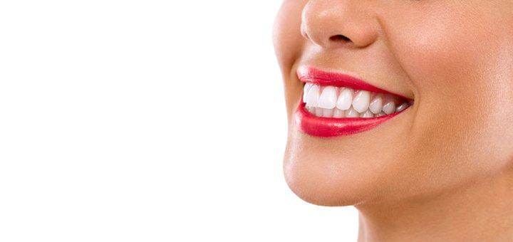 Скидка до 62% на лазерное отбеливание зубов в «Holliwood Smile»
