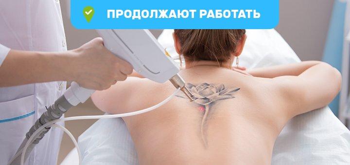 Удаление татуажа или татуировки в «Studio-Laser»